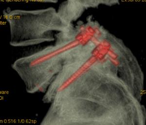 Caso di paziente sottoposto a riduzione di listesi (scivolamento vertebrale), decompressione dei nervi e fusione vertebrale con viti e cage