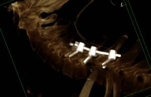 stabilizzazione cervicale. Viti masse laterali