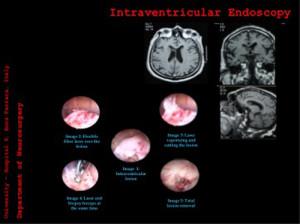 chirurgia-mininvasiva