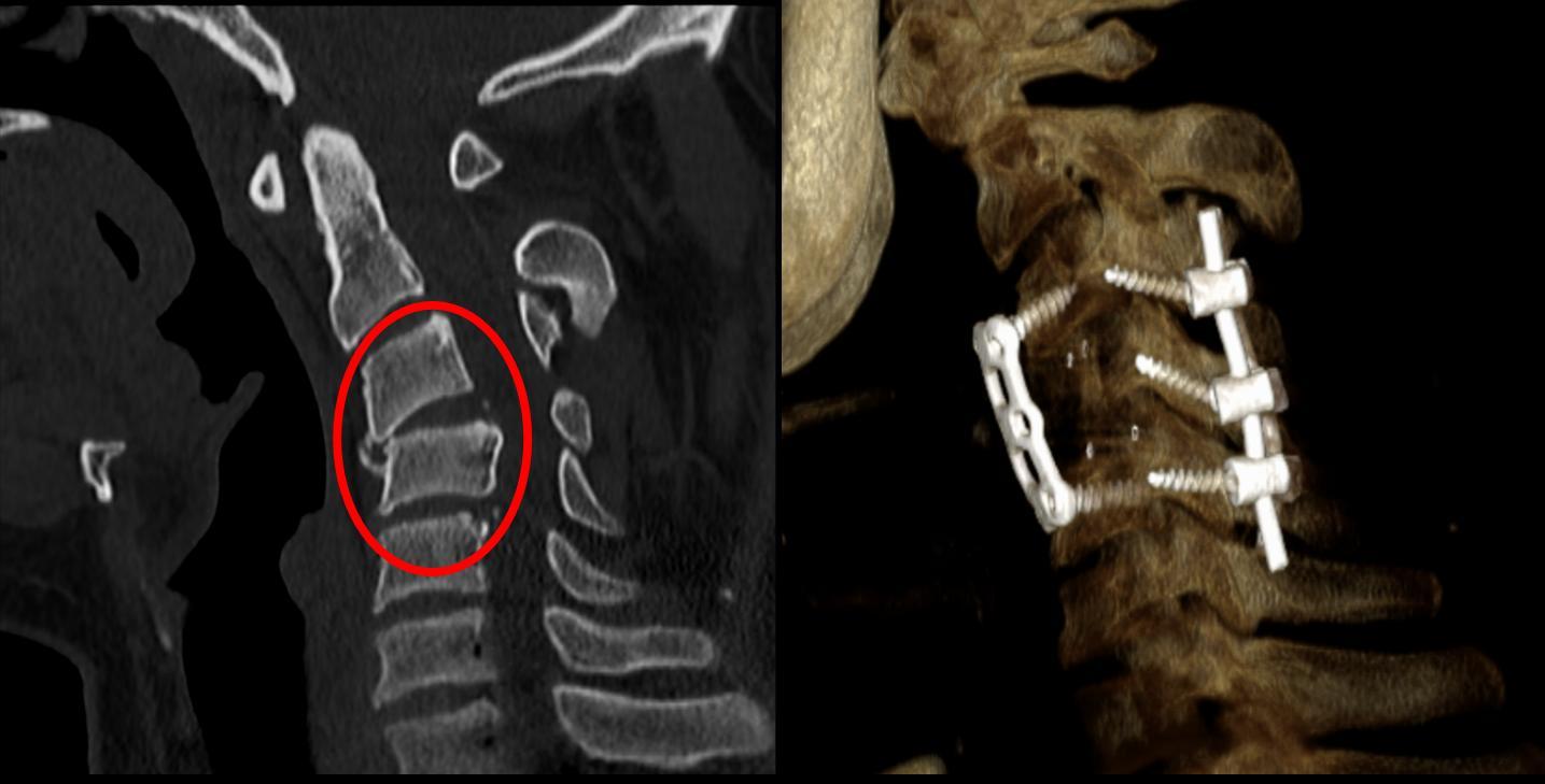 Anomalie di reparto cervicale di sintomi di spina dorsale